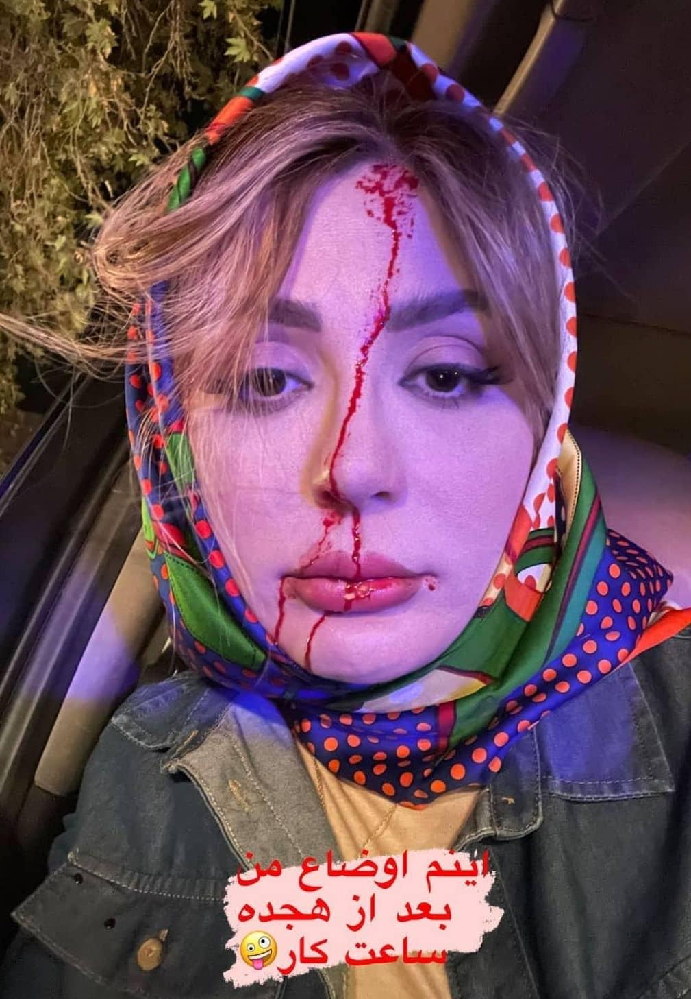 صورت خونآلود نیوشا ضیغمی